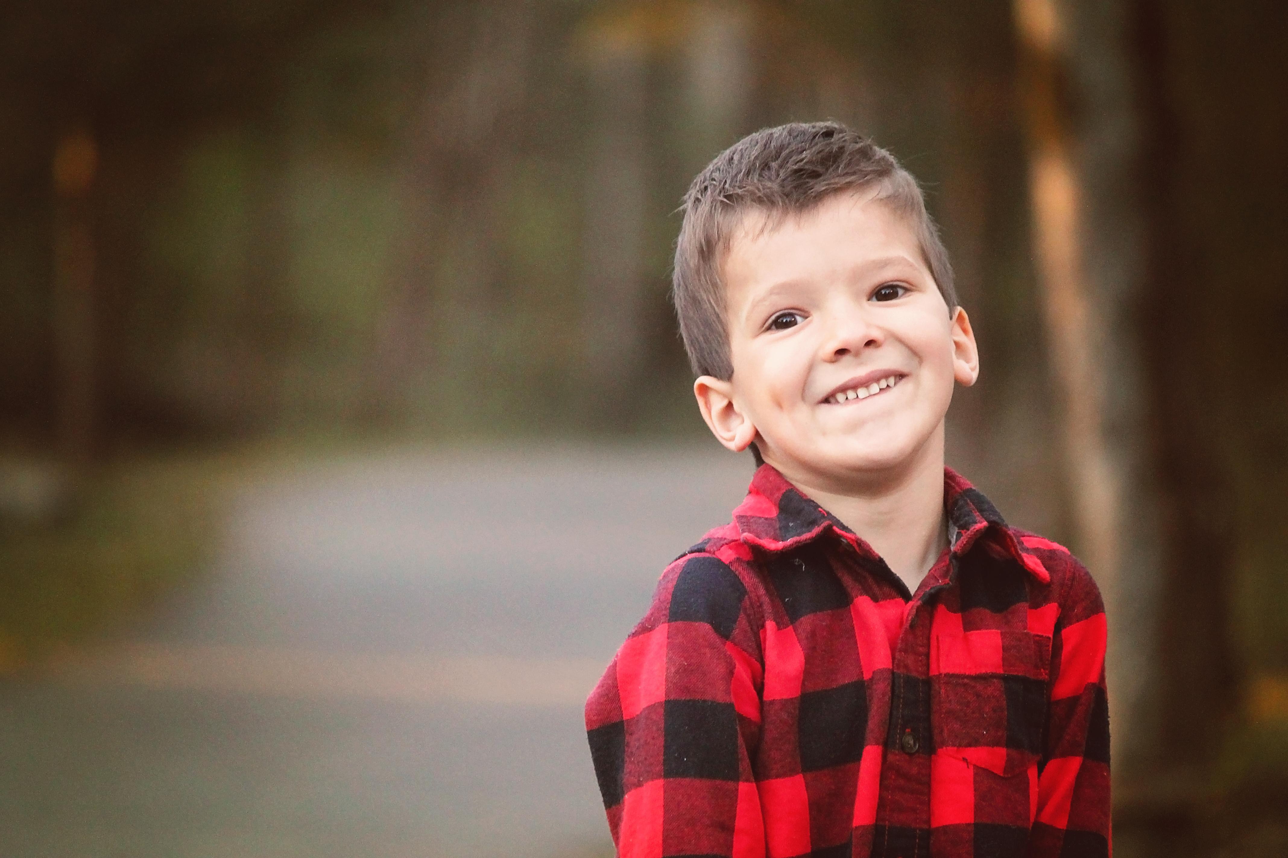 Micah Craniosynostosis After 2nd Surgery